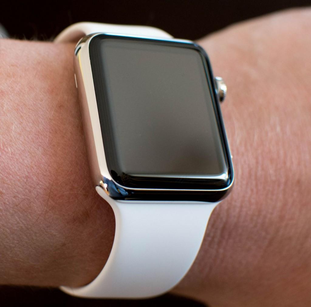 Apple Watch am Arm
